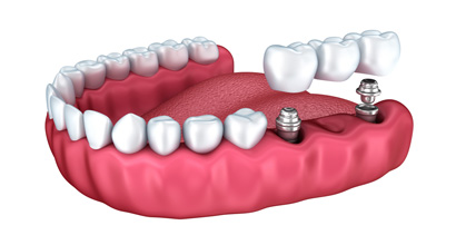 Dental Implants from £1800 *
