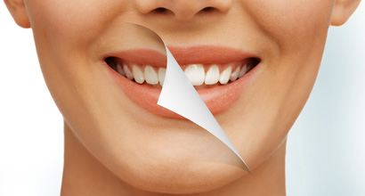 FREE Teeth Whitening with all Orthodontic Treatments